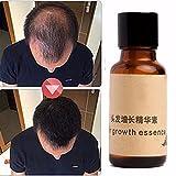 haarwachstum LuckyFine haarwachstum wesen flüssigkeit chinesische kräutermedizin Haarwuchsmittel pflanzliche schnell
