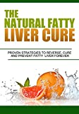 The Natural Fatty Liver Cure, Proven Strategies to Reverse, Cure and Prevent Fatty Liver Forever ! (Fatty Liver Cure,Fatty Liver diet,Fatty liver disease,liver cleanse,liver detox,liver diet)