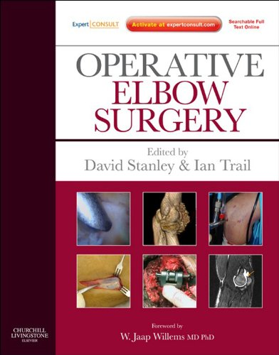 Operative Elbow Surgery: Expert Consult: Online And Print