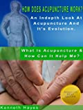 img - for How Does Acupuncture Work? An Indepth Look At Acupuncture And It's Evolution (What Is Acupuncture & How Can It Help Me? Book 3) book / textbook / text book