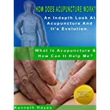 How Does Acupuncture Work? An Indepth Look At Acupuncture And It's Evolution (What Is Acupuncture & How Can It Help Me? Book 3)