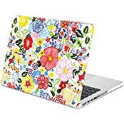 Gmyle Hard Case Print Frosted (Floral Pattern) For 13 Inch Macbook Pro With Retina Display - Blossom Floral