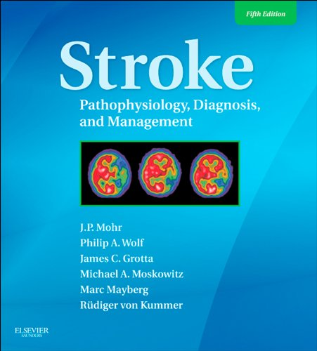 Stroke: Pathophysiology, Diagnosis, And Management (Expert Consult - Online) (Stroke Pathophysiology Diagnosis And Management)