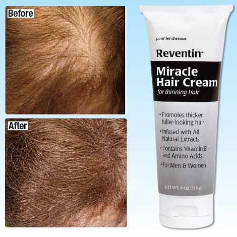 Reventin Miracle Hair Cream