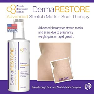 DermaRESTORE - Stretch Mark and Scar Treatment - The Latest in Skin Repair technology - 4oz Cream