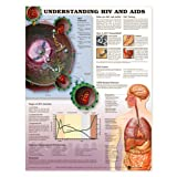 Understanding HIV & AIDS Anatomical Chart Laminated