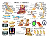 Equine Navicular Syndrome Anatomy Chart