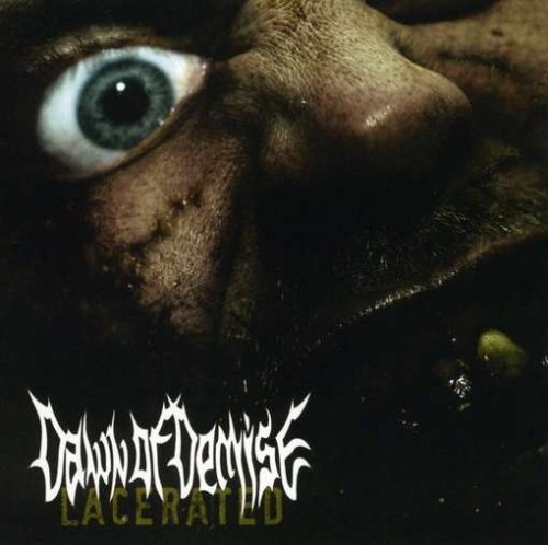 Lacerated by Dawn of Demise