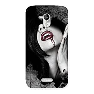 Stylish Wonder Lips Red Back Case Cover for Micromax Canvas HD A116