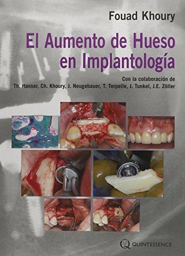 El Aumento de Hueso en Implantologia  [Fouad Khoury] (Tapa Dura)