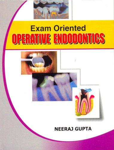 Exam Oriented Operative Endodontics PDF