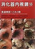 消化器内視鏡 14年10月号 26ー10 食道病変!これ1冊