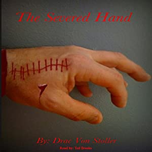 The Severed Hand Audiobook