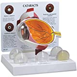 Human Cataract Eye Model w/ 5 Interchangeable Lenses Condition