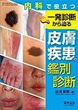 内科で役立つ 一発診断から迫る皮膚疾患の鑑別診断