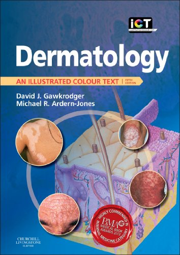Dermatology: An Illustrated Colour Text, 5e