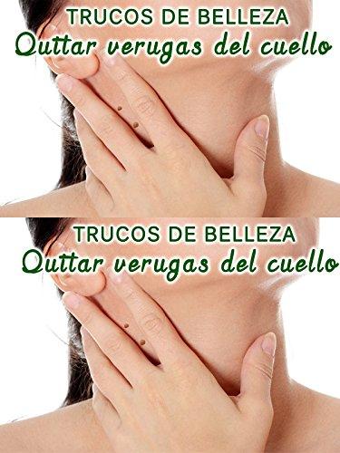 Eliminar verrugas del cuello, senos, pecho, axilas, manos y pies