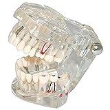 Toponechoice® Transparent Dental Disease Teeth Model Removable Tooth Teaching Model Tools