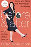 img - for Before & After, Second Revised Edition: Living and Eating Well After Weight-Loss Surgery book / textbook / text book