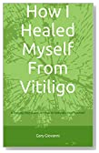 How I Healed Myself From Vitiligo: A Step-by-Step Guide on How to Naturally Heal Yourself