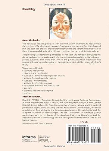 Rosacea: Diagnosis and Management