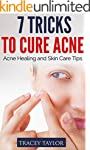 Acne: The Ultimate Guide: 7 Tricks to...