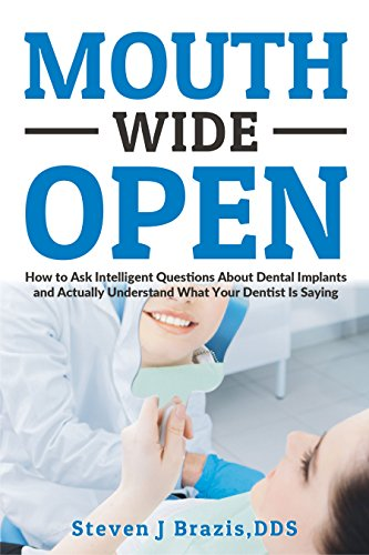 Mouth Wide Open: How To Ask Intelligent Questions About Dental Implants and Actually Understand What Your Dentists Is Saying by Steven J. Brazis DDS