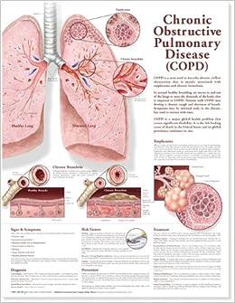 Chronic Obstructive Pulmonary Disease Anatomical Chart: 9780781782364