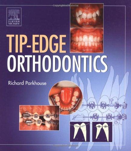 Tip-Edge Orthodontics