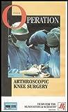 Arthroscopic Knee Surgery (The Operation Series)