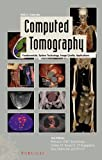 Computed Tomography: Fundamentals, System Technology, Image Quality, Applications