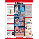 Strokes Explained Wall Chart