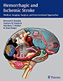 img - for Hemorrhagic and Ischemic Stroke: Medical, Imaging, Surgical and Interventional Approaches book / textbook / text book