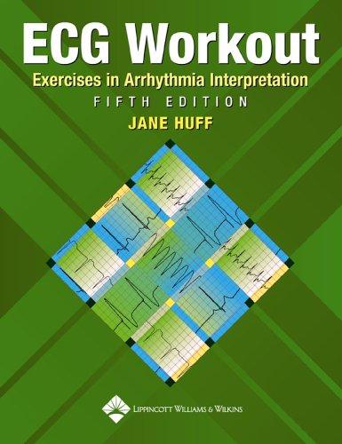 ECG Workout: Exercises in Arrhythmia Interpretation...