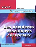 Les accidents vasculaires crbraux