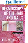 Dermoscopy of the Hair and Nails, Sec...