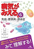 病気がみえる 〈vol.6〉 免疫・膠原病・感染症 (Medical Disease:An Illustrated Reference) -