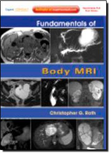 Fundamentals of Body MRI: Expert Consult- Online and Print, 1e (Fundamentals of Radiology)