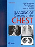 img - for Imaging of Diseases of the Chest by Peter Armstrong FMedSci FRCP FRCR (2000-06-15) book / textbook / text book