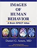 Images of Human Behavior: A Brain SPECT Atlas