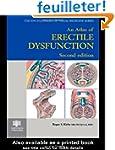 An Atlas of Erectile Dysfunction