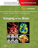 img - for Imaging of the Brain: Expert Radiology Series, 1e book / textbook / text book