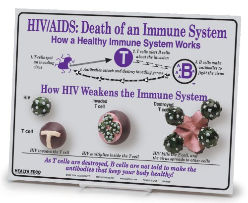 HEALTH EDCO W43116 HIV/AIDS Death of an Immune System Easel 3D Display, 12