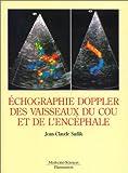 echange, troc Jean-Claude Sadik - Echographie doppler des vaisseaux du cou et de l'encéphale