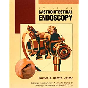 Atlas of Gastrointestinal Endoscopy 514DM9JY8VL._SL500_AA300_