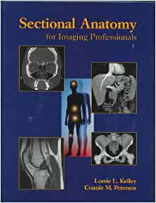 Sectional Anatomy for Imaging Professionals, 1e ...