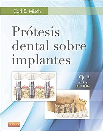 Prótesis dental sobre implantes (Spanish Edition)