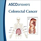 Colorectal Cancer Fact Sheet (pack of 125 fact sheets)