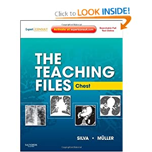 The Teaching Files: Chest: Expert Consult - Online and Print, 1e (Teaching Files in Radiology)