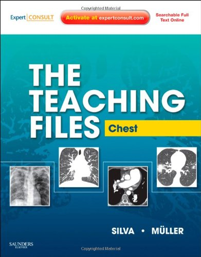 The Teaching Files: Chest: Expert Consult - Online and Print, 1e (Teaching Files in Radiology), by Nestor L. Muller MD  PhD, C. Isabela S.